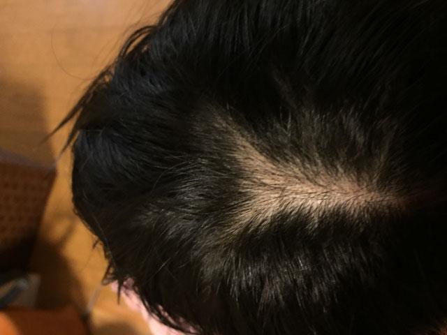 地肌が目立つ頭頂部の分け目