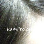 nahokoさんの髪の生え際を撮影した写真