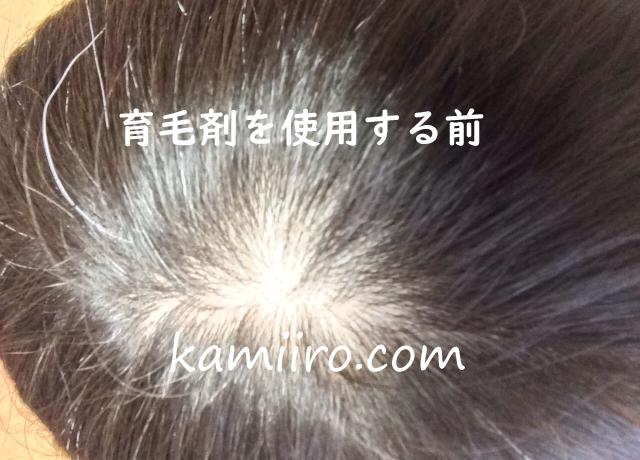 育毛剤を使用する前の頭頂部の写真