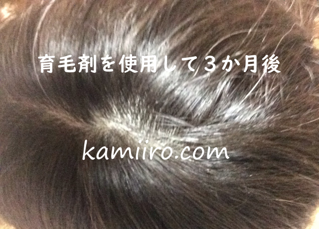 育毛剤を使用してから3か月後の頭頂部の写真
