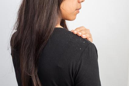 黒い服を着た女性の肩に乗っているフケ