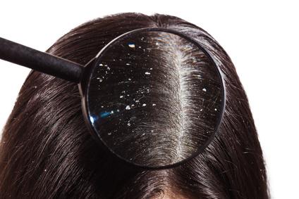 虫眼鏡で見る分け目のフケ